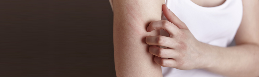 hautarzt-hamburg-moll-dermatomed-schuppenflechte